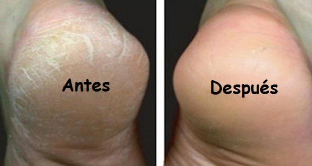 pies_secos_agrietados