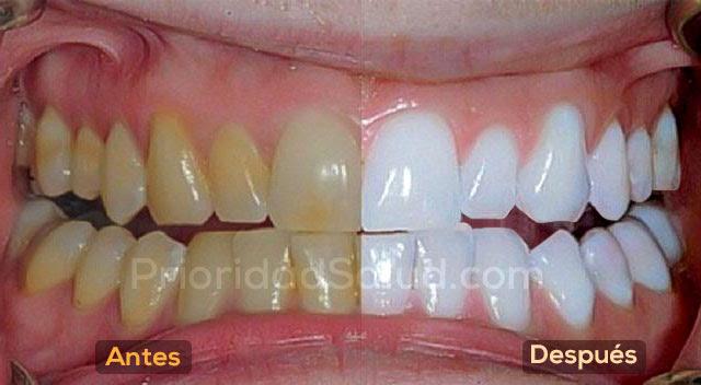 blancos_dientes